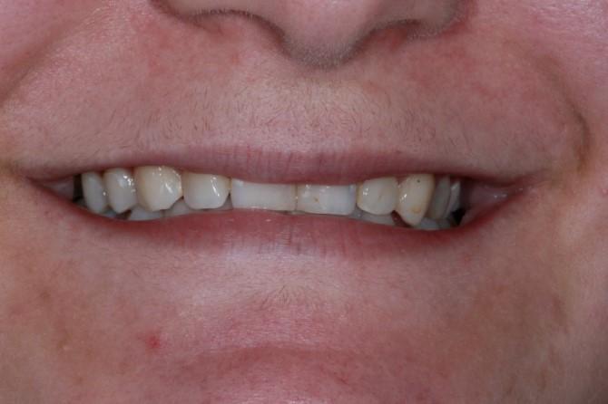 Clareamento Dental Dr Couto