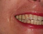 Sorriso Estético 180 dias após o recobrimento radicular