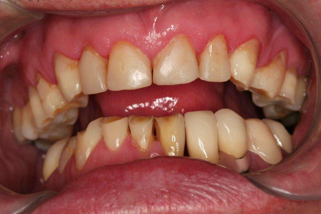 estetica-dental-3