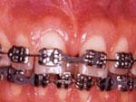 fase intermediaria movimentacao-ortodontica
