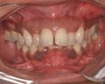 melanoplastia antes-