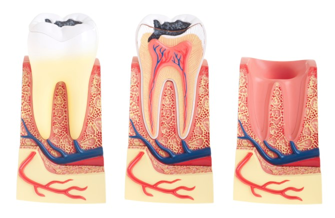 O que é Periodontia ou tratamento da gengiva?