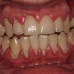 Paciente do sexo masculino, 20 anos de idade, apresentando gengivite, periodontite e retração gengival e periodontal generalizada.
