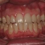 Paciente submetido ao tratamento periodontal básico: Motivação à higiene bucal, raspagem e polimento.