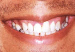 Fig. 6.49 - Sorriso assimétrico.