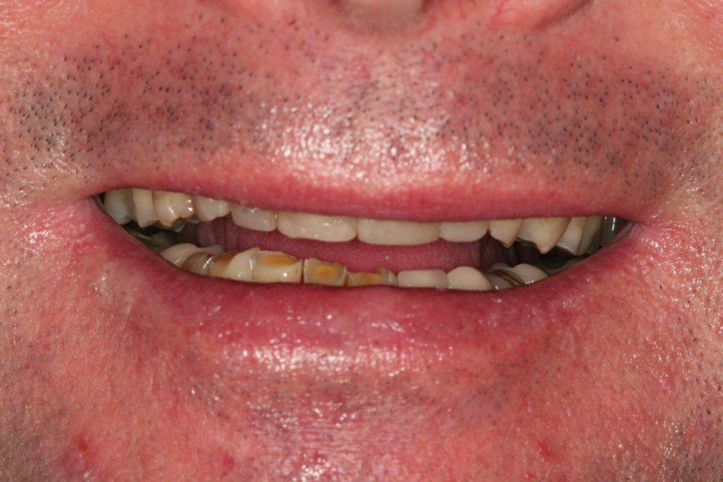 tratamentos-odontologicos-1