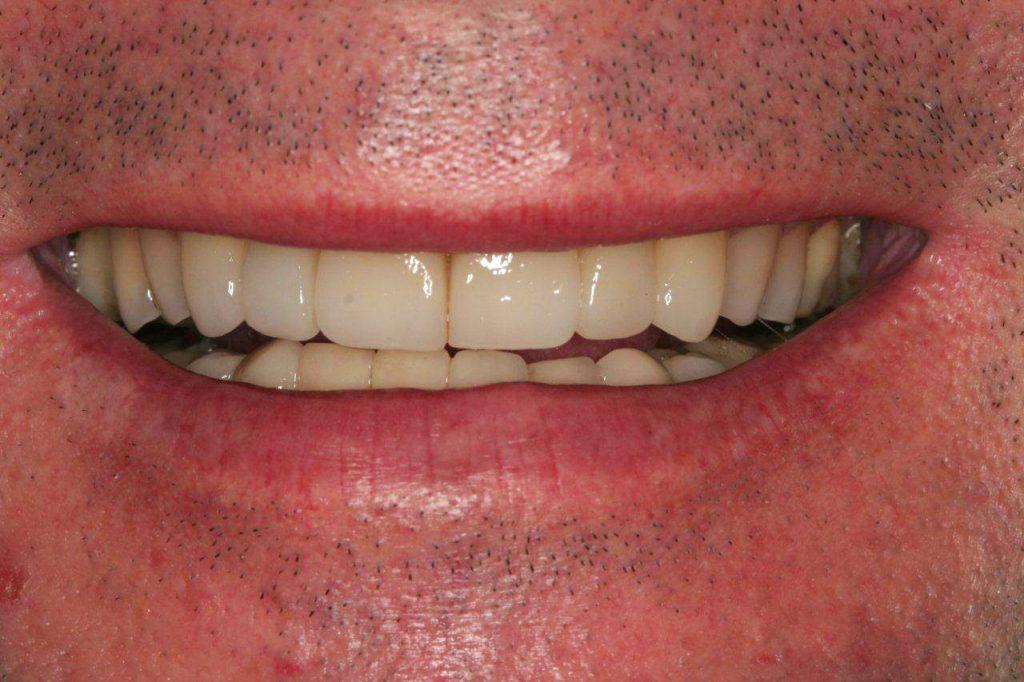 um-novo-sorriso-5