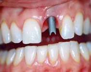 1-implante