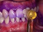17-implantes-dentarios