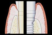 18-implantes-dentarios