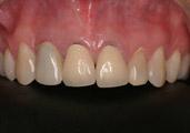 3-implantes-dentarios