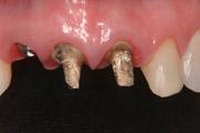 5-implantes-dentarios