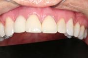 6-implantes-dentarios