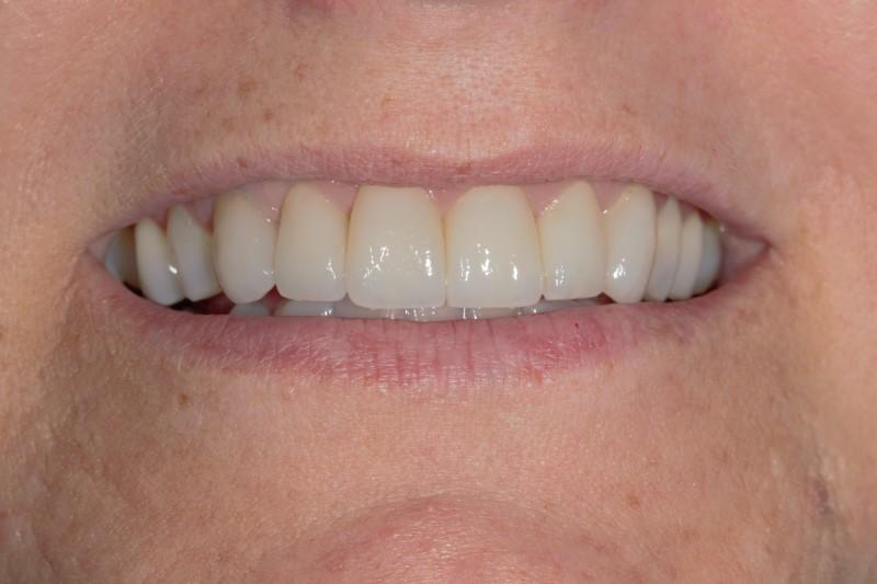 """701535ee3c Laminados tipo """"lentes de contato"""": uma opção conservadora e promissora na  recuperação de sorrisos."""