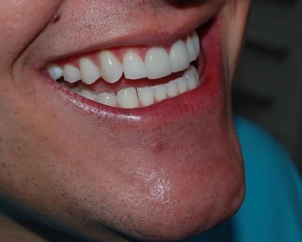 Facetas de Porcelana Dentárias