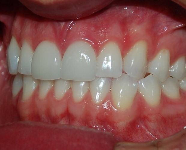 Facetas de Porcelana Dentes