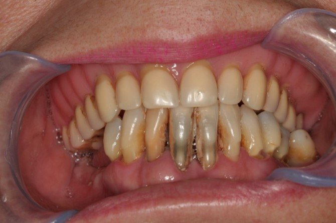 Implantes dentarios: antes
