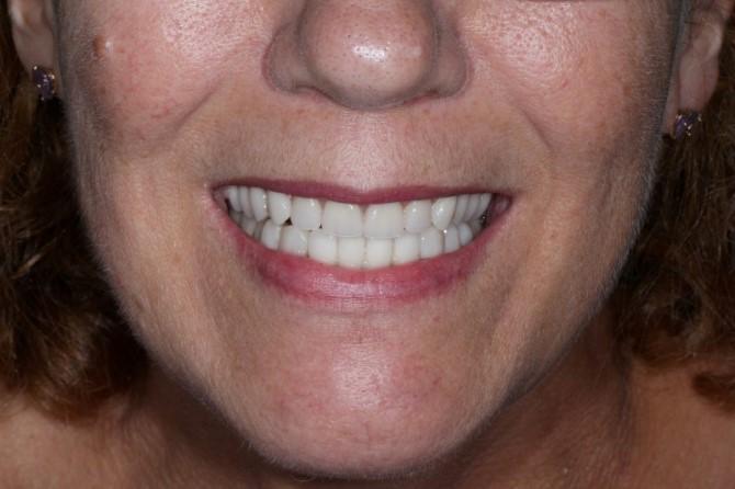 Implantes dentarios: depois