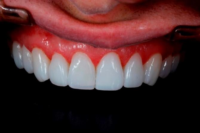 lentes de contato dentarias