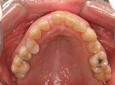 periodontite agressiva generalizada-2