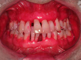 periodontite agressiva generalizada-3