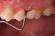 periodontite agressiva generalizada-4