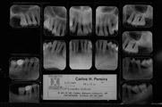 periodontite agressiva generalizada-raiox1