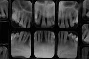 periodontite agressiva generalizada-raiox2