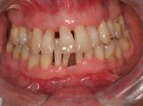 periodontite agressiva generalizada