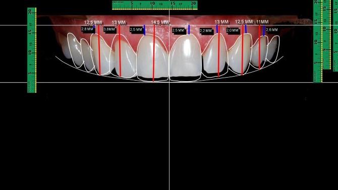 planejamento dental lentes de contato