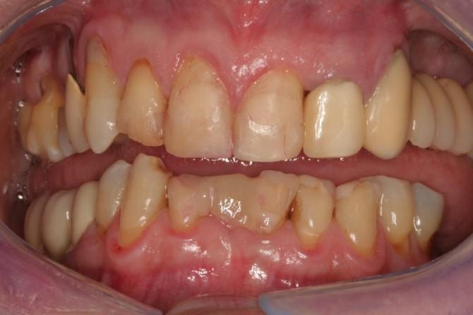 Prótese Dentária Fixa: Caso 2: antes