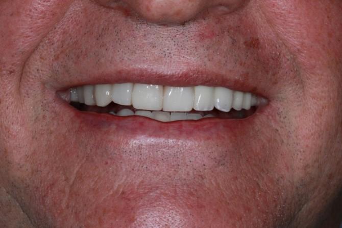Prótese Dentária Fixa: Caso 2: depois