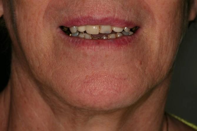Prótese Dentária Fixa: Caso 1: antes