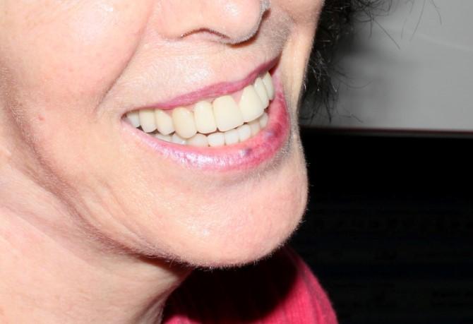 Prótese Dentária Fixa: Caso 1: depois