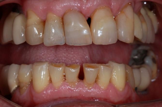 Reabilitação oral para idosos